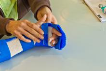 hand physiotherapy to recover a broken finger